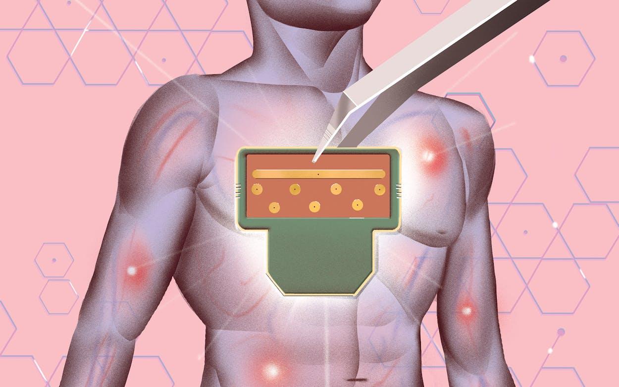 Sepsis-Sensor-UT-Dallas-biomedical-Ambalika-Tanak